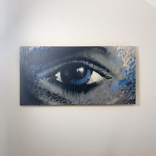 Solvay RS eye